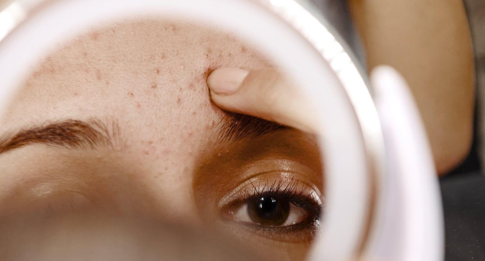 Akné sa vyskytuje v rôznych typoch a formách
