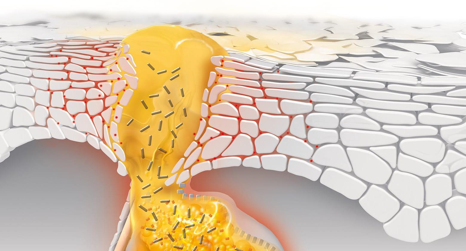 Uzroci akni: kako nastaju bubuljice