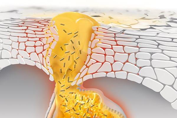 Šta uzrokuje bubuljice i kako dolazi do razvoja akni?