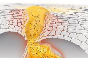 Mi okozza a mitesszereket és a pattanásokat, és hogyan alakul ki az akne?
