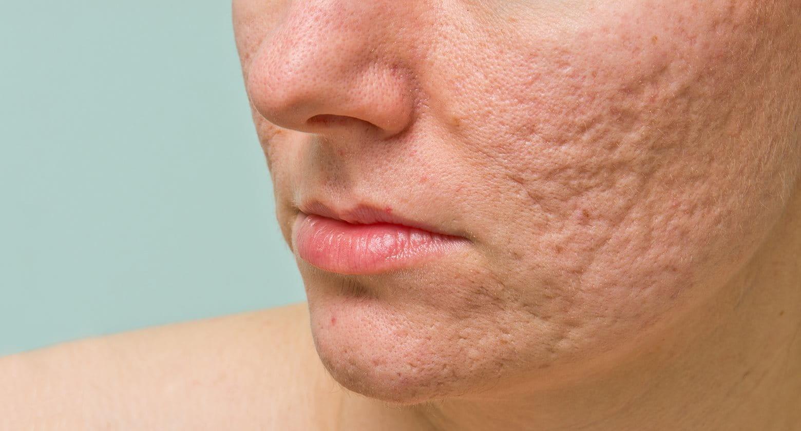 Las cicatrices del acné en la piel