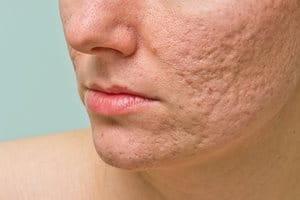 Léčba a odstranění jizev po akné