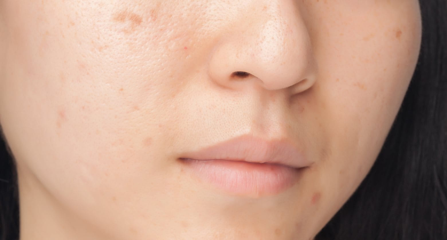 Removing marks from pimples