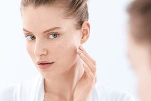 Blemish- and acne-prone skin: causes, triggers, symptoms and advice