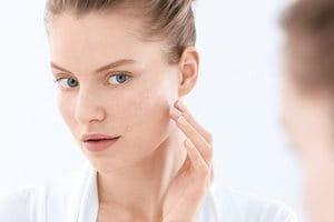 Problémás és aknéra hajlamos bőr: okok, kiváltó tényezők, tünetek és tanácsok