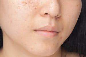 Hyperpigmentierung, Pickelmale nach Akne