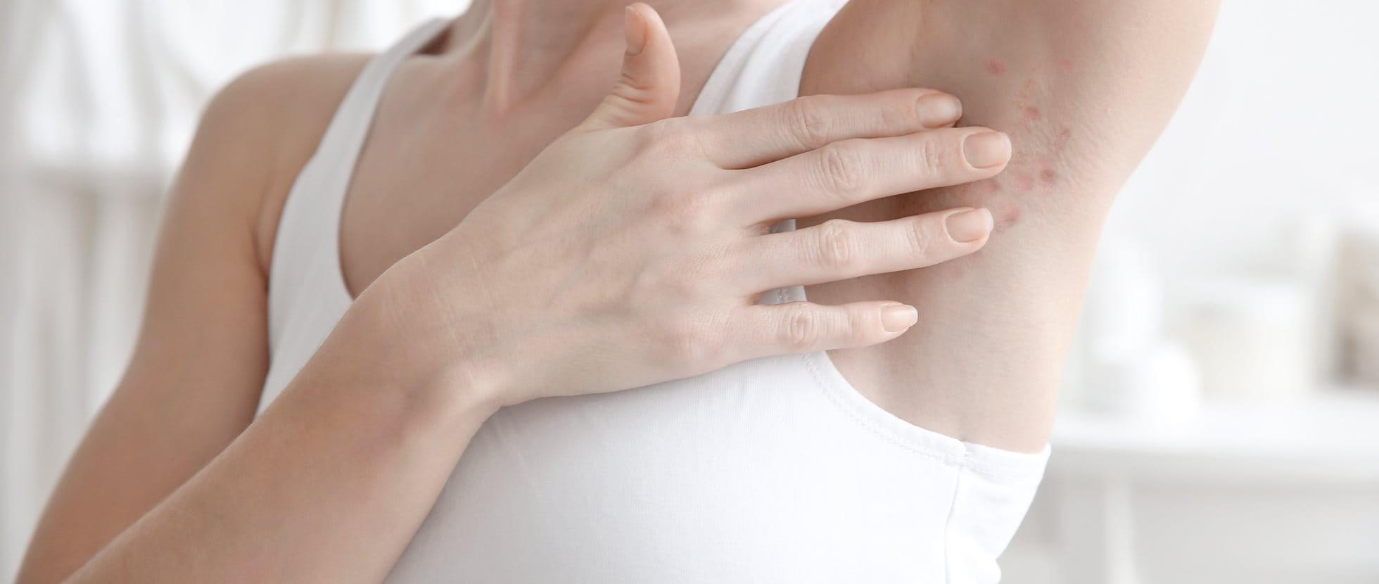 Acne inversa oder Hidradenitis suppurativa, eine spezielle Form von Akne