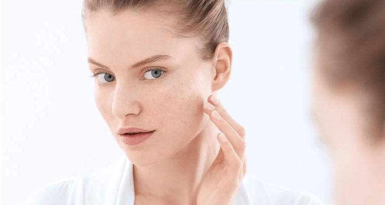 Peau à tendance acnéique