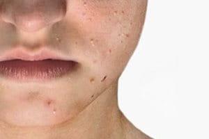 Acne Comedonica (mild acne)