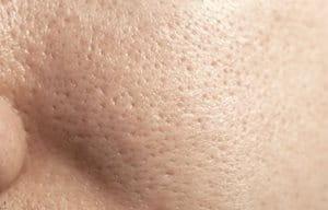 Gương mặt người phụ nữ với làn da dầu