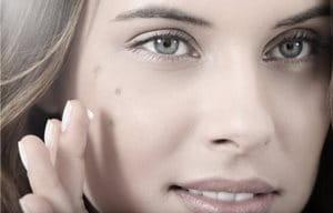 Gương mặt của người phụ nữ với các đốm nâu trên má