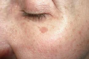 hogyan lehet eltávolítani a vörös öregségi foltokat az arcról)