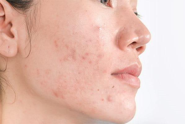Hiperpigmentación post-inflamatoria del acné