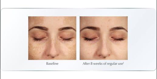 Best serum for hyperpigmentation