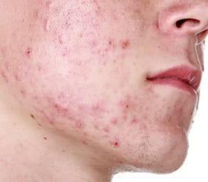 Imagen de los grados de gravedad del acné
