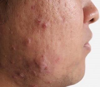 ozbiljne akne na osobi