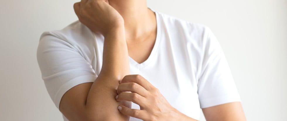 An eczema rash is one sign of an eczema flare up