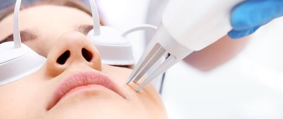 Laser treatment: laser treatment skin