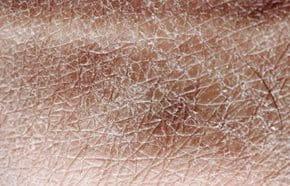 mycket torr hud