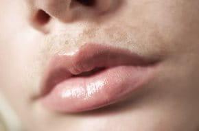 Eucerin Hiperpigmentación En General Piel Pigmentada