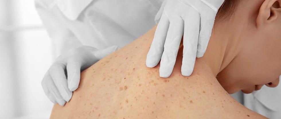Untersuchung von braunen Flecken auf der Haut