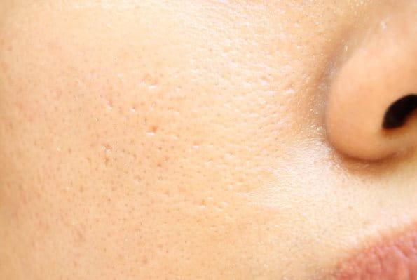 Fettige Haut im Gesicht mit großen Poren