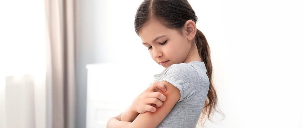 Neurodermitis bei Kindern: Pflegetipps
