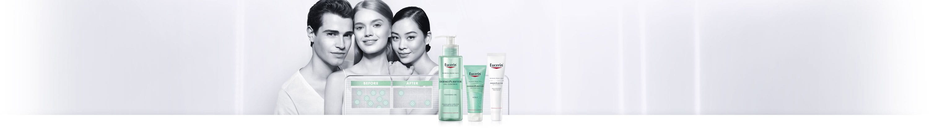 Woman with facial acne prone skin